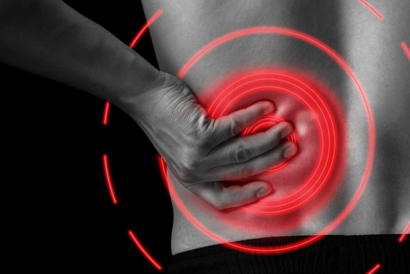 An epidural steroid injection treats lower back and leg pain.